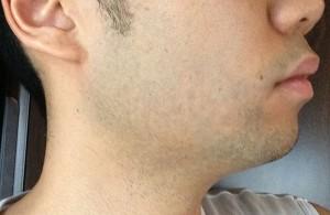 髭脱毛で治療する前の横顔
