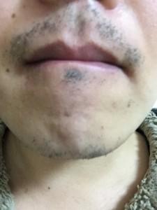 【4】2015-1-5 髭剃り前