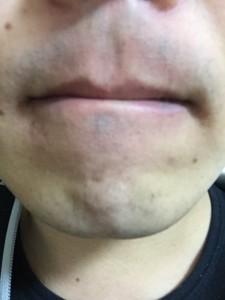 【2】2014-12-6 髭剃り後
