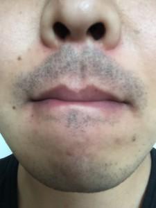 【1】2014-11-29 髭剃り前