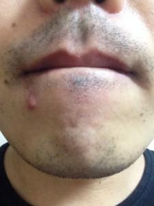 ★写真1★ヒゲ脱毛初回から2ヶ月経過後 剃らずに2日