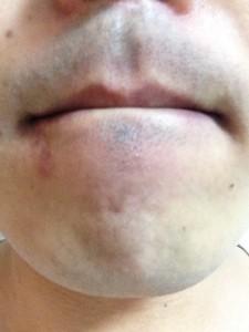 ★写真2★ヒゲ脱毛初回から2ヶ月経過後 ひげ剃り後の状態