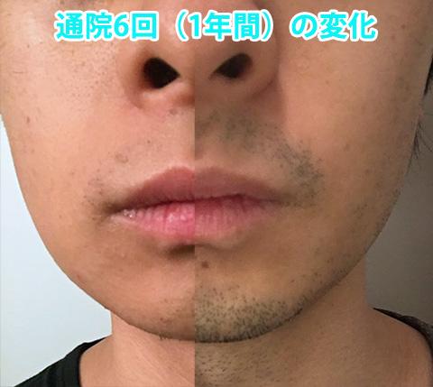 170321_hige_hashimoto03